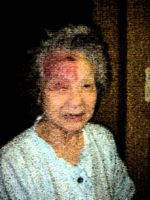 母の帯状疱疹